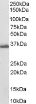 Western blot - Anti-AKR1C3 antibody (ab27491)
