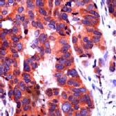Immunohistochemistry (Formalin/PFA-fixed paraffin-embedded sections) - Anti-Notch1 antibody, prediluted (ab27527)