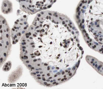 Immunohistochemistry (Formalin/PFA-fixed paraffin-embedded sections) - Anti-SLUG antibody (ab27568)