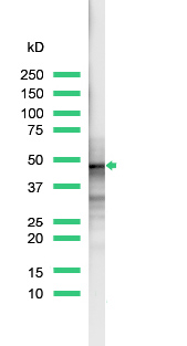 Western blot - Anti-CD23 antibody [SP23], prediluted (ab27594)