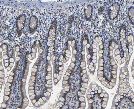 Immunohistochemistry (Formalin/PFA-fixed paraffin-embedded sections) - Anti-PARN antibody (ab27778)