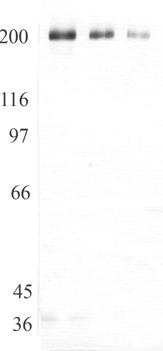 Western blot - Anti-ADAMTS13 antibody (ab28273)