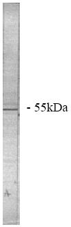 Western blot - Anti-PPP2R2A antibody (ab28370)