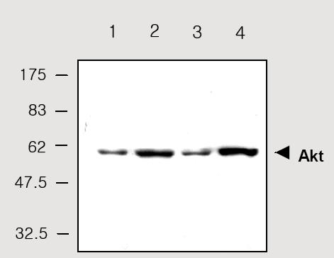 Western blot - Anti-AKT1 antibody (ab28422)