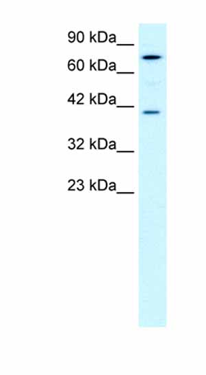 Western blot - Anti-PCK1 antibody - Azide free (ab28455)