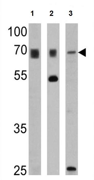 Western blot - Anti-PMP70 antibody (Biotin) (ab28499)