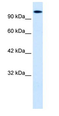 Western blot - Anti-HIPK2 antibody (ab28507)
