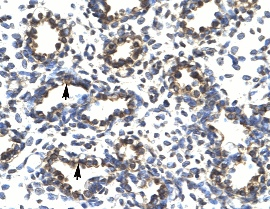 Immunohistochemistry (Formalin/PFA-fixed paraffin-embedded sections) - Anti-PRDM14 antibody (ab28638)