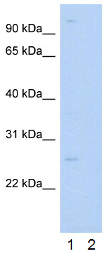 Western blot - Anti-RAB14 antibody (ab28639)