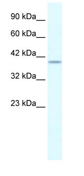 Western blot - Anti-PHKG2 antibody (ab28642)