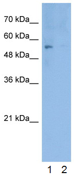 Western blot - Anti-ERG antibody (ab28662)