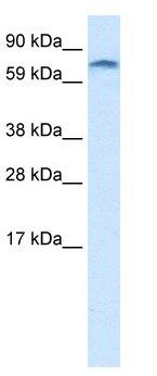 Western blot - Anti-ZNF84 antibody (ab28719)