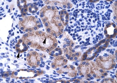 Immunohistochemistry (Formalin/PFA-fixed paraffin-embedded sections) - Anti-ZNF84 antibody (ab28719)