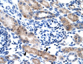 Immunohistochemistry (Formalin/PFA-fixed paraffin-embedded sections) - Anti-CLIC1 antibody (ab28722)