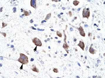 Immunohistochemistry (Formalin/PFA-fixed paraffin-embedded sections) - Anti-CLCN3 antibody (ab28736)