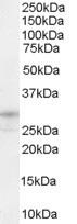 Western blot - Anti-soluble TNF Receptor I antibody (ab28749)
