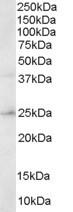 Western blot - Anti-ERAB antibody (ab28750)