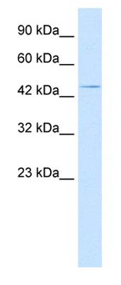 Western blot - Anti-HOXA3 antibody (ab28771)