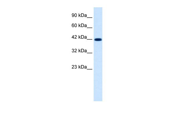 Western blot - Anti-KCNQ2 antibody (ab28778)