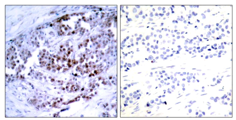 Immunohistochemistry (Formalin/PFA-fixed paraffin-embedded sections) - Anti-Bcl-2 (phospho S70) antibody (ab28819)