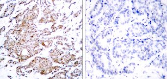 Immunohistochemistry (Formalin/PFA-fixed paraffin-embedded sections) - Anti-c-Myc (phospho T58) antibody (ab28842)