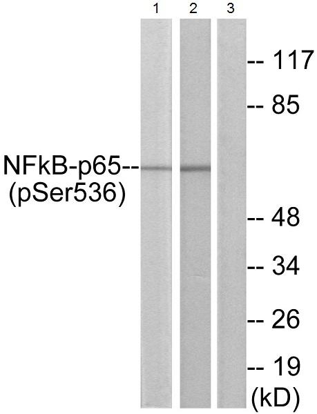 Western blot - Anti-NF-kB p65 (phospho S536) antibody (ab28856)