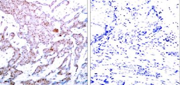Immunohistochemistry (Formalin/PFA-fixed paraffin-embedded sections) - Anti-NF-kB p65 (phospho S536) antibody (ab28856)