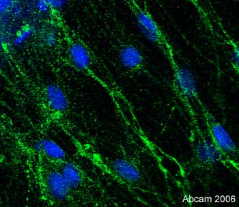 Immunocytochemistry/ Immunofluorescence - Anti-Doublecortin antibody - Neuronal Marker (ab28941)