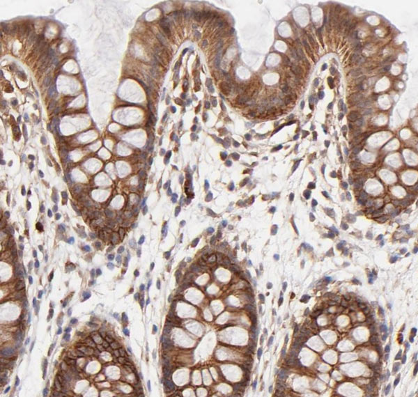 Immunohistochemistry (Formalin/PFA-fixed paraffin-embedded sections) - Anti-Integrin beta 1 antibody [4B7R] (ab3167)