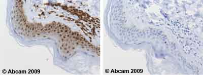 Immunohistochemistry (Formalin/PFA-fixed paraffin-embedded sections) - Anti-Proteasome 20S LMP7 antibody (ab3329)