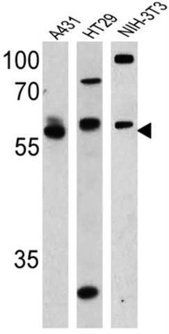 Western blot - Anti-Cannabinoid Receptor I antibody (ab3559)