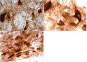 Immunohistochemistry (Formalin/PFA-fixed paraffin-embedded sections) - Anti-Cannabinoid Receptor II antibody (ab3561)