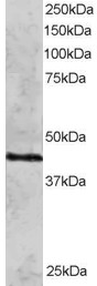 Western blot - Anti-Rad51C antibody (ab3669)