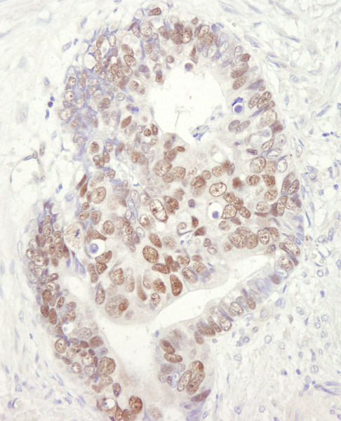 Immunohistochemistry (Formalin/PFA-fixed paraffin-embedded sections) - Anti-MCM3 antibody (ab3725)