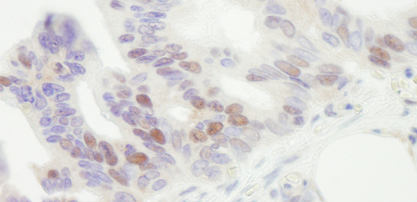 Immunohistochemistry (Formalin/PFA-fixed paraffin-embedded sections) - Anti-MCM4 antibody (ab3728)