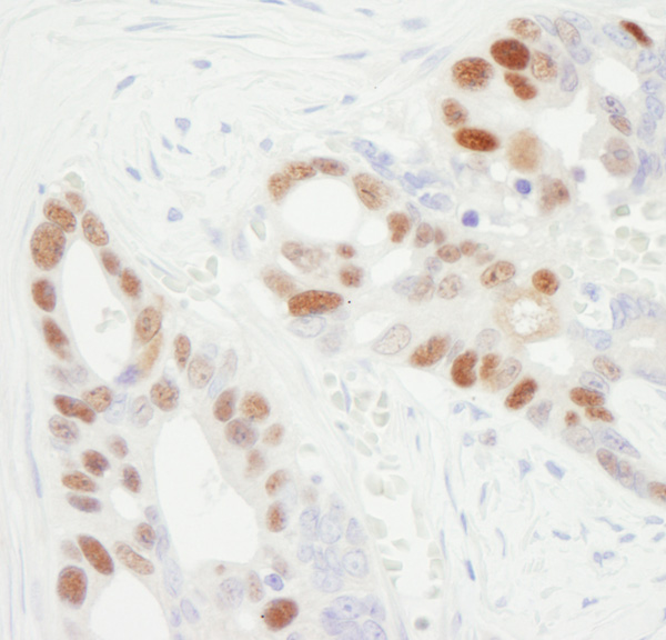Immunohistochemistry (Formalin/PFA-fixed paraffin-embedded sections) - Anti-MCM6 antibody (ab3730)