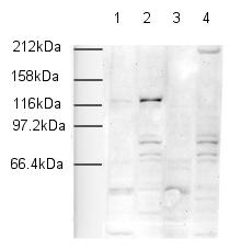 Western blot - Anti-SNF2H antibody - ChIP Grade (ab3749)