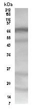 Western blot - Anti-HDAC10 antibody (ab3964)