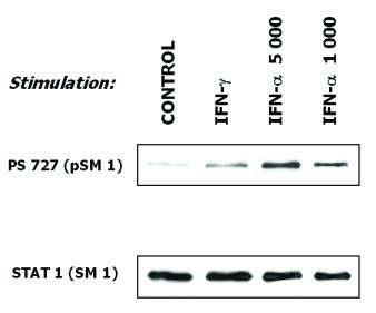 Western blot - Anti-STAT1 antibody [SM1] (ab3987)