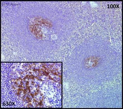 Immunohistochemistry (Formalin/PFA-fixed paraffin-embedded sections) - Anti-CD35 antibody [E11] (ab30378)