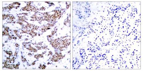 Immunohistochemistry (Formalin/PFA-fixed paraffin-embedded sections) - Anti-MEF2A (phospho T312) antibody (ab30644)