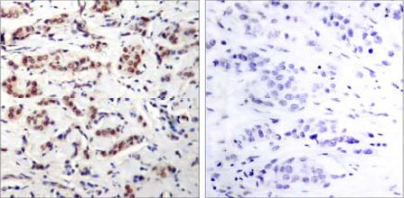 Immunohistochemistry (Formalin/PFA-fixed paraffin-embedded sections) - Anti-STAT5a (phospho Y694) antibody (ab30648)