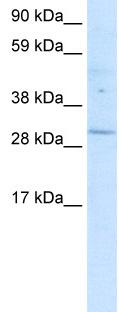 Western blot - Anti-POU6F1 antibody (ab30944)