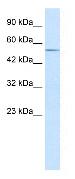 Western blot - Anti-ZFP91 antibody (ab30970)