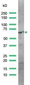 Western blot - Anti-ZAP70 antibody, prediluted (ab31009)