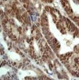 Immunohistochemistry (Formalin/PFA-fixed paraffin-embedded sections) - Anti-Nrf2 antibody, prediluted (ab31164)