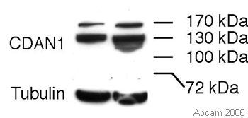 Western blot - Anti-CDAN1 antibody (ab31236)