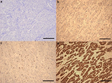 Immunohistochemistry (Formalin/PFA-fixed paraffin-embedded sections) - Anti-PPM1D antibody (ab31270)