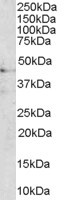 Western blot - Anti-MC3 Receptor antibody (ab31309)