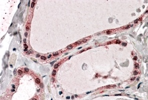 Immunohistochemistry (Formalin/PFA-fixed paraffin-embedded sections) - Anti-PPP2R1A antibody (ab31316)